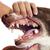 зубов · сидят · стоматолога · женщину - Сток-фото © cynoclub