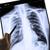 röntgen · összetört · szív · férfi · mellkas · mutat · egy - stock fotó © frameangel
