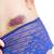 vrouw · huid · kneuzing · groot · been - stockfoto © haraldmuc
