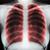 astma · zdrowia · diagnoza · schemat · zdrowych · niezdrowy - zdjęcia stock © ivicans