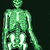 груди · Xray · фото · человека · костях · медицинской - Сток-фото © jonnysek