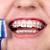 teeth with orthodontic brackets stock photo © kurhan