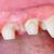 dental treatment stock photo © lighthunter