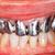 cerâmico · dentes · oral · cavidade · coroa - foto stock © lighthunter