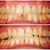 fogkő · eltávolítás · fogászati · kezelés · fogorvosi · rendelő · munka - stock fotó © lighthunter