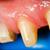 fogak · rehabilitáció · makró · lövés · fog · fogászati - stock fotó © Lighthunter
