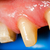 tanden · rehabilitatie · macro · shot · tand · tandheelkundige - stockfoto © Lighthunter