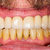 prótesis · boca · dentales · salud · dientes · atención - foto stock © lighthunter