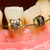 Closing of gap with dental braces stock photo © Lighthunter