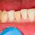 incisors stock photo © lighthunter