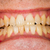 healthy teeth stock photo © lighthunter