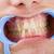 tanden · tandarts · onderzoeken · goede · voorbeeld · tandheelkundige - stockfoto © lighthunter