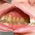 fogászati · fogszabályozó · fogak · fogszabályozási · kezelés · makró - stock fotó © Lighthunter