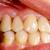 керамической · корона · здоровья · зубов · ухода - Сток-фото © lighthunter
