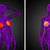 3D · medische · illustratie · menselijke · borst - stockfoto © maya2008