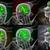 3D · medici · illustrazione · cervello · umano - foto d'archivio © maya2008