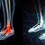 pied · douleur · médicaux · symbole · douloureux · inflammation - photo stock © maya2008