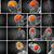 3D · medici · illustrazione · cervello · vista · posteriore - foto d'archivio © maya2008