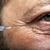 homem · seringa · tratamento · botox · colágeno · beleza - foto stock © NikiLitov