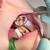 dental cavity stock photo © simazoran