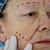senior · mulher · injeção · de · botox · hospital · médico · moda - foto stock © zurijeta